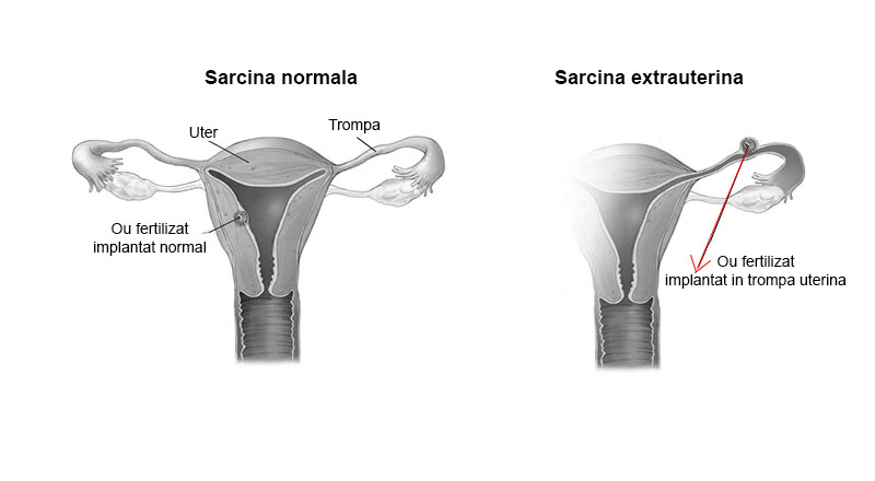 Sarcina extrauterina - ectopica